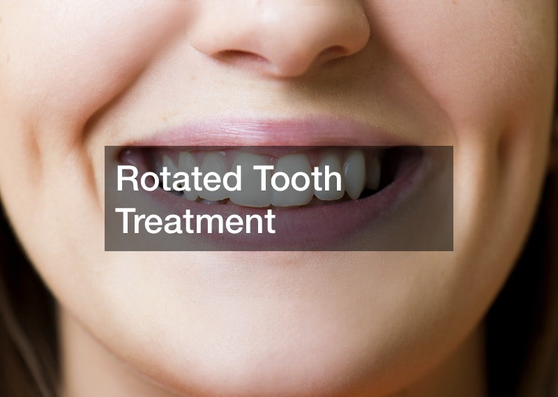 Rotated Tooth Treatment